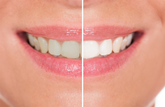 Close-up of woman's teeth; right half shows the effect of whitening