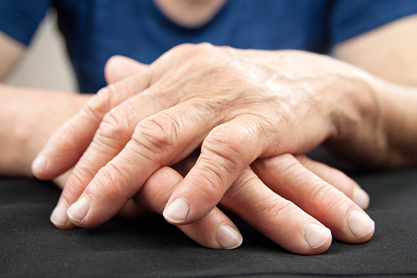 Hands of a woman with rheumatoid arthritis